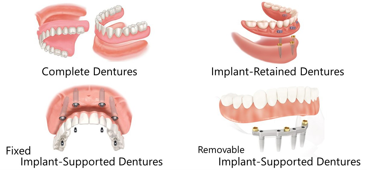 Losing a number of teeth doesn't mean that dentures are the only solution.